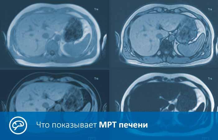 Что показывает МРТ печени