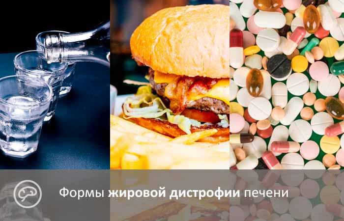 Формы жировой дистрофии