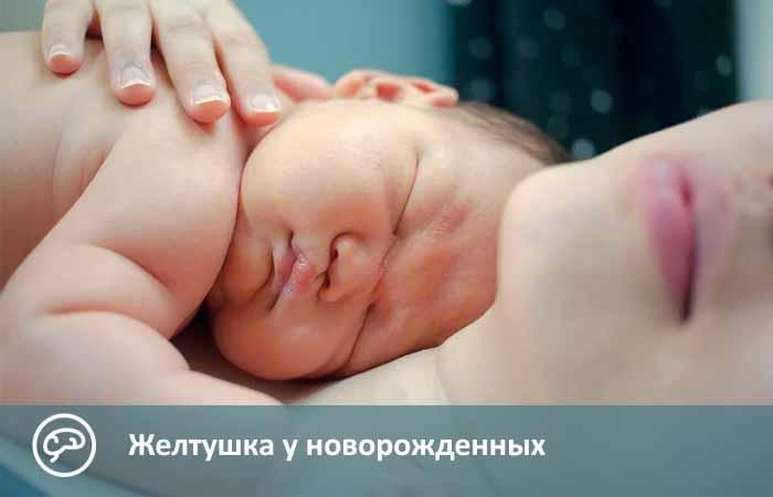 Почему бывает желтушка у новорожденных