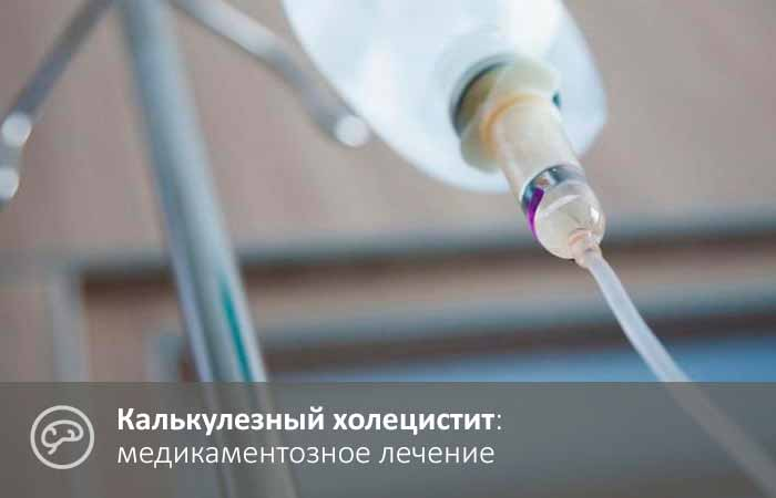 Лечение калькулезного холецистита