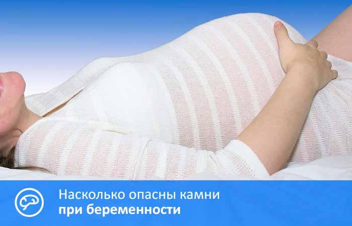 камни при беременности