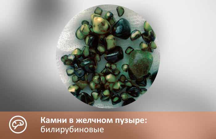Билирубиновые камни