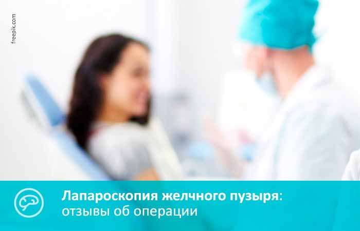 Отзывы на лапароскопию