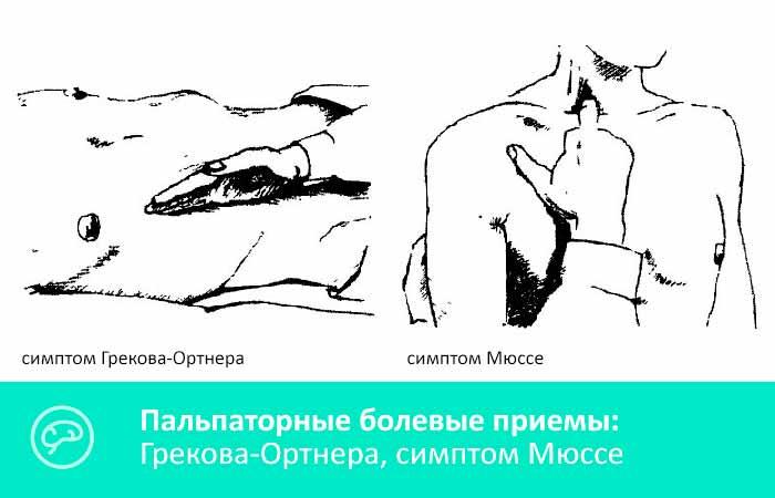 Болевые симптома Грекова-Ортнера