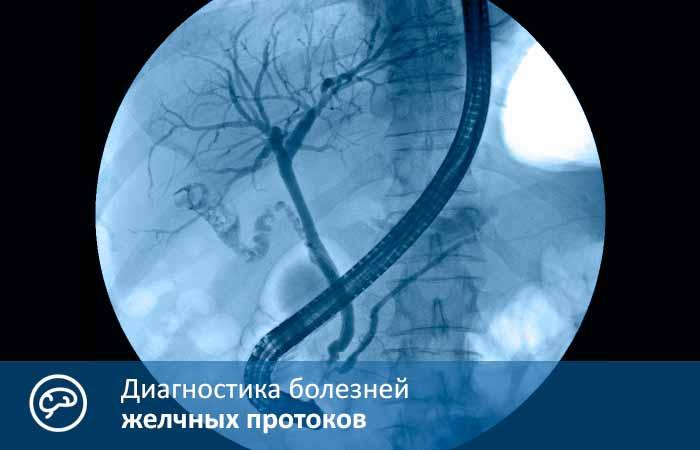 Диагностика болезней желчных протоков