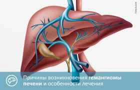 Причины возникновения гемангиомы печени и особенности лечения